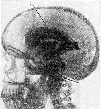 Рис. 10. Рентгенограмма черепа в боковой проекции при вентгикулографии с введением эмульсии майодила. Воспалительная окклюзия (указана стрелкой) четвертого желудочка обусловливает гидроцефалию боковых желудочков (1).
