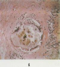 Рис. 1. Микропрепарат подагрического тофуса из области локтевого сустава: отложение солей мочевой кислоты в виде аморфных масс и кристаллов, по периферии — клеточная реакция с участием многоядерных клеток и развитие грубой фиброзной ткани; окраска гематоксилин-эозином; х 200.