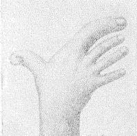 Рис. 3. Гипердактилия и гиперфалангия I и II пальцев правой кисти.