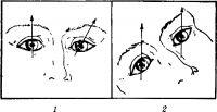Рис. Направление зрительных осей при поражении левого блокового нерва (зрительная ось обозначена стрелкой)