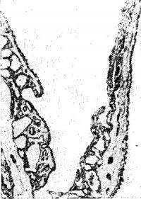 Рис. 42. Микропрепарат врожденной периферической кисты легкого: частично видны полость кисты (в центре) и ее стенки, представленные тканью легочной паренхимы и выстланные уплощенным цилиндрическим эпителием.