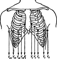 Рис. 3. Схема расположения электродов при регистрации однополюсных грудных отведений ЭКГ: V1 — V6 — общепринятые грудные отведения; V3R — V6R — дополнительные правые грудные отведения; 1, 2, 3, 4 — межреберные промежутки.