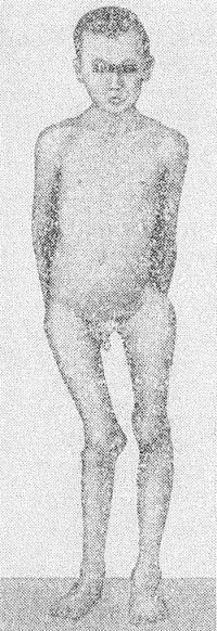 Рис. 2. Больной с поражением и характерной деформацией нижних конечностей при полиоссальной фиброзной остеодисплазии: проксимальный отдел левого бедра имеет варусную деформацию, большой вертел поднят до уровня тела подвздошной кости; вальгусная деформация в правом коленном суставе.