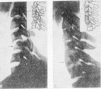 Рис. 3. Рентгенограммы (и их схемы) шейного отдела позвоночника при переломовывихе У шейного позвонка (боковая проекция): а — до операции, б — после корпородеза (стрелками указана область перелома).