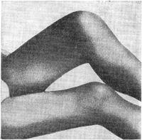 Рис. 14. Острый гонорейный артрит левого коленного сустава. Резкое опухание и увеличение в объеме левого коленного сустава. Сгибательная контрактура.