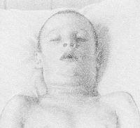 Рис. 4. Больной с отеком шейной клетчатки при токсической форме дифтерии зева.