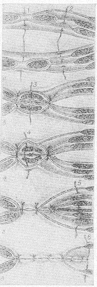 Рис. 6. Схема закрытия верхнего поперечного разреза в пределах прямой мышцы живота (а, б и в) и кнаружи от нее (г и д). Последовательность наложения швов на края раны от середины кнаружи; сшиваются: 1 — белая линия с брюшиной, 2 — полулунная линия апоневроза с брюшиной, 3 — задний листок влагалища прямой мышцы с брюшиной, 4— передний листок влагалища прямой мышцы, 5 — внутренняя косая мышца с поперечной мышцей и брюшиной, 6 — наружная косая мышца.