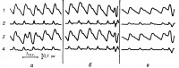 Рис. 2. Биполярные реограммы в возрасте 14 лет (а), 23 лет (б) и 51 года (в) в норме: 1 и 3 — реограммы с двух отведений; 2 и 4 — первые производные реограмм. С увеличением возраста закономерно меняется характер реограмм (форма вершин, угол наклона восходящей и нисходящих частей реографических волн, величина и число дополнительных реографических волн), а также их первых производных.
