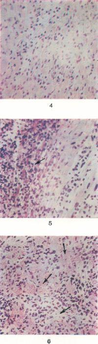 Рис. 4. Микропрепарат миокарда при паренхиматозном миокардите: мышечные волокна в состоянии набухания и глыбчатого распада, в межуточной ткани инфильтрация из лимфоидных клеток и полиморфно-ядерных лейкоцитов. Рис. 5. Микропрепарат миокарда при гнойном миокардите; слева в поле зрения воспалительные инфильтраты (указано стрелкой). Рис. 6. Микропрепарат миокарда при продуктивном миокардите: на фоне дистрофических изменений мышечных волокон и воспалительных инфильтратов из полиморфно-ядерных лейкоцитов и гистиоцитов, очаговое разрастание фиброзной ткани (указано стрелками).