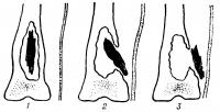 Рис. 11. Схематическое изображение вариантов расположения секвестров: 1 — внутри костной полости; 2 — частично вне полости; 3 — вне полости.