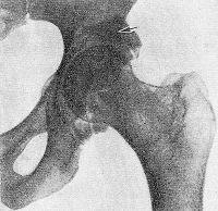 Рис. 13. Рентгенограмма левого тазобедренного сустава при заднем вывихе бедренной кости с переломом верхнего края вертлужной впадины: стрелкой указан отломок стенки вертлужной впадины.