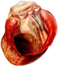 1. Хроническая аневризма передней стенки левого желудочка, верхушки и межжелудочковой перегородки. Резкое истончение стенки в области аневризмы