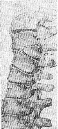 Рис. 10. Препарат поясничного отдела позвоночника (вид сбоку): клиновидный полупозвонок (указан стрелкой).