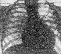 Рис. 10. Рентгенограмма грудной клетки больного с дефектом межжелудочковой перегородки (прямая проекция): тень сердца увеличена за счет обоих желудочков, заметное выбухание дуги легочного ствола (указано стрелкой), легочный рисунок в прикорневых отделах легких усилен.