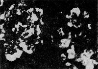 Рис. 3. Иммунофлюоресценция иммуноглобулинов (светлые участки) в почечных клубочках при волчаночном гломерулонефрите; метод Кунса.