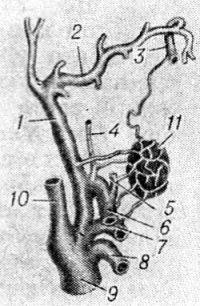Рис. 3. Схематическое изображение кровоснабжения небной миндалины: 1 — наружная сонная артерия; 2 — верхнечелюстная артерия; 3 — нисходящая небная артерия; 4 — восходящая глоточная артерия; 5 — восходящая небная артерия; 6 —лицевая артерия; 7 — язычная артерия; 8 — верхняя щитовидная артерия; 9 — общая сонная артерия; 10 — внутренняя сонная артерия; 11 — небная миндалина.