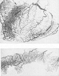 Рис. 8. Коронарорентгенограмма: выражено новообразование сосудов (указано стрелками) в зоне атипичного инфаркта передней стенки; внизу — коронарорентгенограмма поперечного среза миокарда.