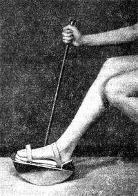 Рис. 3. Стопа больного фиксирована к механотерапевтической «качалке»: с помощью рычага больной увеличивает амплитуду движений в голеностопном суставе.
