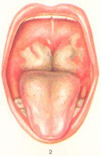 Рис. 2. Дифтерия зева — токсическая форма (слизистая оболочка мягкого неба отечна, миндалины резко увеличены и соприкасаются друг с другом, поверхность их покрыта грязнобелыми налетами);