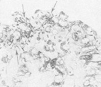 Рис. 4. Микропрепарат толстой кишки обезьяны, больной дизентерией: в эпителиальных клетках слизистой оболочки видны шигеллы (указаны стрелками).
