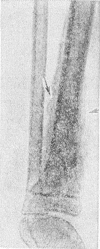 Рис. 13. Рентгенограмма костей голени больного остеомиелитом при переходе болезни в хроническую стадию: видны массивные периостальные наслоения (указаны стрелками) и остеосклероз в метадиафизe большеберцовой кости.