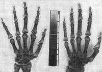 Рис. 7. Кисть при подостром артрите (справа). Слева — кисть того же больного через 28 дней. В центре рисунка калиброванный клин. Денситометрия указывает на прогрессирование остеопороза (рентгеноденситограмма).