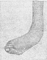 Рис. 7. Стопа при травматическом плоско вальгусном плоскостопии .