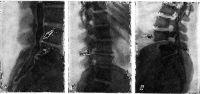 Рис. 2. Миелограмма (а) и рентгенограммы пояснично-крестцового отдела позвоночника (б, в) при радикулите (боковая проекция)