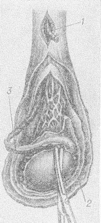 Рис. 2. Схематическое изображение одного из этапов операции эпидидимэктомии: пересекают и перевязывают семявыносящий проток (1); придаток яичка (2) отделяют острым путем, начиная от хвоста придатка (3).