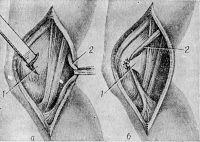 Рис. 8. Схематическое изображение операции восстановления большеберцовой коллатеральной связки из перемещенного сухожилия полу сухожильной мышцы (по Босфорту): а — образование костно-надкостничной створки на внутреннем мыщелке бедра; б — конечный этап операции — сухожилие перемещено в проекции большеберцовой коллатеральной связки и укреплено створкой; 1 — костно-надкостничная створка; 2 — сухожилие полусухожильной мышцы.