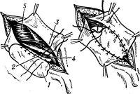 Рис. 14. Схема аллопластики по Петровскому: имплантат (1) снизу пришивается к паховой связке (2), сверху — к внутренней стороне верхнего лоскута апоневроза наружной косой мышцы (3); 4 — семенной канатик; 5 — внутренняя косая мышца; на рисунке справа — имплантат вшит.