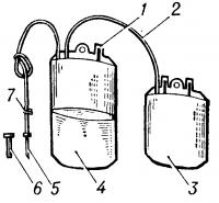 Рис. 2. Схематическое изображение сдвоенного контейнера «Гемакон» для взятия крови: 1 — штуцер для присоединения системы переливания крови, 2 — соединительная трубка, 3 —пластикатный контейнер для компонентов крови, 4— пластикатный контейнер с консервантом, 5— инъекционная игла, 6 — колпачок для инъекционной иглы, 7— зажим.