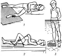 Рис. 12. Виды физических упражнений, способствующих увеличению амплитуды движений нижних конечностей и укрепляющих мышцы после оперативного восстановления целости или пластики различных связок коленного сустава: 1 — облегчение движений в левом коленном суставе с помощью роликовой тележки; 2 — использование подставки с резиновой лентой для создания сопротивления разгибанию в коленном суставе; 3 — отягощение нижней конечности манжетой с вкладными свинцовыми пластинами для усиления нагрузки при движении больного в бассейне.