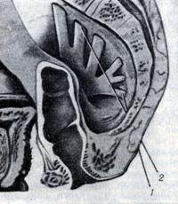 Рис. 10. Парасакральная анестезия. Схема продвижения иглы по пути от пятого (1) к первому (2) сакральному корешку