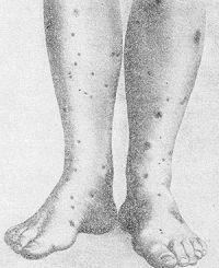 Рис. 2. Узелково-некротический васкулит (Вертера — Дюмлинга).