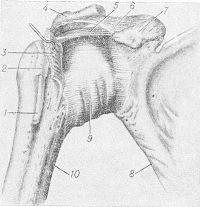 Рис. 2. Схематическое изображение правого плечевого сустава (вид спереди): 1 — сухожилие длинной головки двуглавой мышцы плеча, 2 — межбугорковое синовиальное влагалище, 3 — подлопаточная мышца, 4 — акромион, 5 — клювовидно-плечевая связка, 6 — клювовидно-акромиальная связка, 7 — клювовидный отросток, 8 — лопатка, 9 — суставная капсула, 10 — плечевая кость.