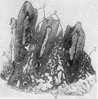 Рис. 1. Гистотопограмма нижней челюсти при пародонтозе: 1 — зубы; 2 — Межальвеолярные костные перегородки с сохранившимися контурами вершин; 3 — участки остеосклероза; 4 — участки остеопороза; окраска гематоксилин-эозином; хЗ.