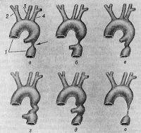 Рис. 1. Схематическое изображение некоторых вариантов коарктации аорты: а — постдуктальная коарктация (артериальный проток выше места сужения): 1 — аорта; 2 — плечеголовной ствол; 3 — левая общая сонная артерия; 4 — левая подключичная артерия; стрелкой указано сужение аорты; б — предуктальная коарктации (артериальный проток ниже места сужения); в — постдуктальная коарктации с частично суженной аортой; г — предуктальная коарктация с частичным сужением аорты; д — артериальный проток отходит от места сужения аорты; e — гипоплазия части нисходящей аорты.