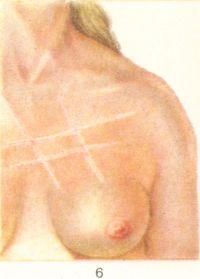 Рис. 6. Белый дермографизм.