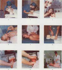 Рис. 5 — 7. Проведение искусственного дыхания: изо рта в рот через марлевую маску (рис. 5), с помощью S-образного воздуховода (рис. 6), с использованием аппарата «Вита-1» (рис. 7). Рис. 8. Проведение интубации новорожденному через рот с помощью воздуховода. Рис. 9 —10. Проведение непрямого массажа сердца, у взрослого (рис. 9), у новорожденного (рис. 10; показано на муляже). Рис. 11 —12. Проведение прямого массажа сердца (грудная клетка вскрыта, сердце обнажено): одной рукой (рис. 11), двумя руками (рис. 12). Рис. 13. Проведение электрической дефибрилляции.