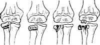 Рис. 21. Схематическое изображение вариантов перелома головки и шейки лучевой кости.