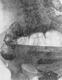 Рис. 12. Прямая рентгенограмма брюшной полости с контрастированием кишечника (ирригоскопия) при завороте слепой кишки: длинный горизонтальный уровень жидкости (1) в раздутой слепой кишке. Контрастная взвесь заполнила толстую кишку, включая восходящую (2), и не проникает в слепую.