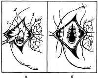 Рис. 15. Схема рассечения сфинктера печеночно-поджелудочной ампулы (сфинктеротомия): а — клиновидное иссечение устья большого дуоденального сосочка после дуоденотомии; б — стенки печеночно-поджелудочной ампулы подшиты к слизистой оболочке двенадцатиперстной кишки. Пунктиром обозначены контуры печеночно-поджелудочной ампулы (1), общего желчного протока (2) и протока поджелудочной железы (3).