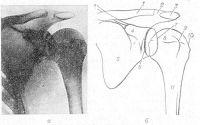 Рис. 3. Рентгенограмма плечевого сустава в прямой задней проекции (а) и схема с нее (б): 1 — ключица, 2 — акро-миально-ключичный сустав, 3 — акромион, 4 — клювовидный отросток лопатки, 5 — лопатка, 6 — передний край суставной впадины лопатки, 7 — задний край суставной впадины лопатки, 8 — головка плечевой кости, 9 — малый бугорок плечевой кости, 10 — большой бугорок плечевой кости, 11 — плечевая кость.