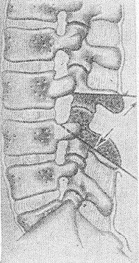 Рис. 30. Задняя клиновидная вертебротомия (стрелками указаны проекции плоскостей, о граничивающие резецируемый участок).