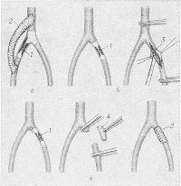 Рис. 28. Схематическое изображение операций восстановления магистрального кровотока при сегментарной окклюзии артерий: а — обходное шунтирование; б — эндартериэктомия; в — резекция закупоренного сегмента артерии с ее протезированием (1 — закупоренный тромбом участок артерии, 2 — трансплантат, 3 — рассеченный участок артерии, 4 — удаленный участок артерии).