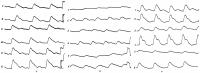 Рис. 5. Сегментарные продольные реограммы нижних конечностей (1 — правое бедро; 2—левое бедро; 3—правая голень; 4—левая голень; 5 — правая стопа; 6—левая стопа). Все реограммы схематизированы и даются при одинаковых исходных условиях и единой калибровке (калибровка 0,1 ом, что соответствует высоте 20 мм — указано стрелками): а— здорового человека (дается для сравнения); б— больного с облитерирующим атеросклерозом бедренной артерии; уменьшено кровенаполнение правого бедра (1), правой голени (3) и правой стопы (5); в — больного с облитерирующим эндартериитом нижних конечностей; уменьшено кровенаполнение правой стопы (5) и правой голени (3).