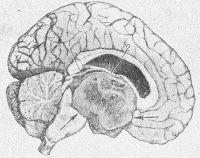 Рис. 7. Сагиттальный срез головного мозга: астроцитома третьего желудочка (указана стрелкой), обтурирующая водопровод мозга (1) и межжелудочковое отверстие (2).