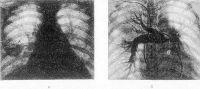 Рис. Данные рентгенологического исследования при тромбоэмболии легочных артерий: а — рентгенограмма грудной клетки при множественной тромбоэмболии легочных артерий (прямая проекция); сосудистый рисунок в верхних долях обоих легких обеднен, в нижних отделах — усилен; корни легких расширены, левый — в основном прикрыт тенью сердца; справа, на уровне четвертого — пятого межреберья,— участок инфильтрации легочной ткани, обусловленный инфарктом легкого (указан стрелкой); тень сердца расширена в обе стороны, талия сердца сглажена; б — ангиопульмонограмма при тромбоэмболии левой легочной артерии, в основном верхнедолевой ветви (1 — тромб, импрегнированный контрастным веществом в левой верхнедолевой артерии; 2 — устье левой легочной артерии, недостаточно контрастированное из-за расположения в нем «хвоста» тромбоэмбола).