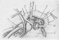 Рис. 5. Схематическое изображение закрытия аортолегочного свища через легочный ствол: 1 — правое предсердие, 2 — аорта, 3 — наложение швов на свищ через рассеченный легочный ствол, 4 — легочный ствол, 5 — правый желудочек.